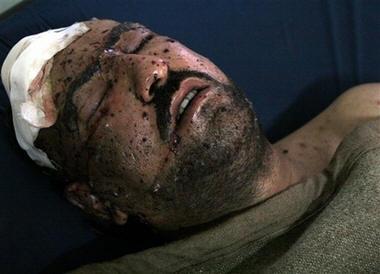 An injured Iraqi at the Kindi hospital in Baghdad, Iraq, Wednesday, Nov. 8, 2006. (AP Photo/Karim Kadim)